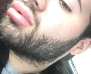 De juicy lips van Kosta.