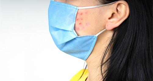 Maskne: acne door mondmaskers voorkomen en genezen doe je zo